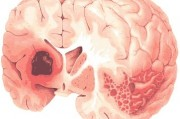 Реперфузионное повреждения ткани мозга при остром