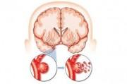 Особенности клинического течения ишемического инсульта в различные периоды после его развития
