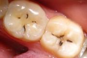 Кариес зубов: формы, клиника, тактика лечения