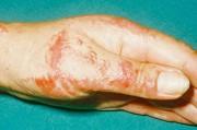 Лечение контактного дерматита