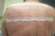 Кожные аллергические пробы при аллергическом конта