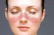 Фотодинамическое действие порфирина секрета сальных желез – основное звено в патогенезе кожных поражений при красной волчанке