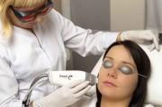 Лазерный пилинг: омоложение и удаление дефектов кожи
