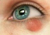 Халязион. симптомы и лечение