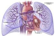 Хроническое легочное сердце. Особенности легочной