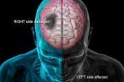 Левый и правый инсульты