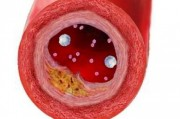 Коррекция обмена липидов при атеросклерозе