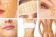 Немного больше о мезонитях от доктора - косметолога Центра эстетической медицины «Грация»