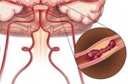 Микроинсульт или транзиторная ишемическая атака. Э