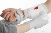 Сильное кровотечение у ребенка