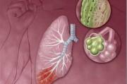 Пневмония: классификация, клиника, лечение, профилактика