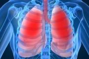 Пневмония у лиц с тяжелой иммуносупрессией