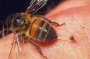 Экстренная медицинская помощь при укусе насекомых