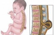 Врожденные пороки развития позвоночника