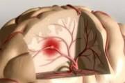 Инсульт. Диагностика и первая неотложная помощь