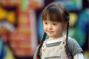 Ребёнок с синдромом Дауна