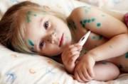 Ветряная оспа у детей. Этиология, клиника, лечение, профилактика