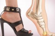 Обувь на высоком каблуке – модно и вредно для здоровья