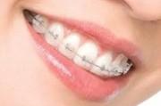 Выравнивание зубов, методы и виды выравнивания зубов