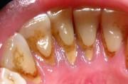 Зубной налет или зубная бляшка