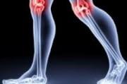 Физические нагрузки или их отсутствие негативно влияют  на коленный сустав