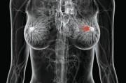 Новый метод лечения рака молочной железы.