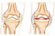 Открыт новый безоперационный метод лечения остеоартрита