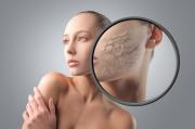 Сухость кожи не проблема, если следовать советам дерматологов