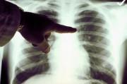 Рак легких способен значительно сократить женскую часть населения Европы.