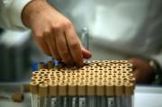 Идеальный отечественный противовоспалительный препарат ждет спонсоров, чтобы покорить мир