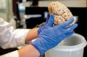 Австралийские ученые - без пяти минут создатели бионического мозга