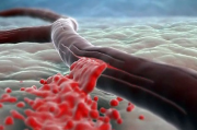 Акустический манжет гарантирует быстрое избавление от кровотечений