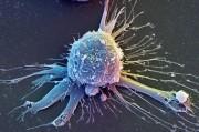 Обнаружен новый механизм старения раковых клеток