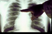 Рак легких под прицелом генетиков