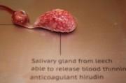 Использование гибридных органов превращаются из научной фантастики в реальность