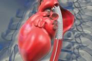 Искусственная аорта спасет жизни многих сердечников