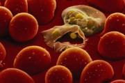 Москве угрожает эпидемия малярии