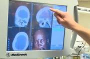 Медики из России обещают подарить миру не отторгаемые имплантаты