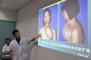 Как китайские учёные лицо вырастили, или врачебный долг за улыбку пациентки