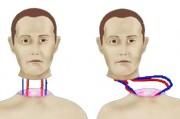 Задумки профессора Доуэля превращаются в реальность или опыты по пересадке голов
