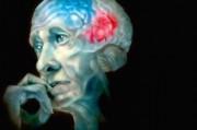 Британские специалисты празднуют победу над деменцией