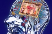 Протезирование мозга избавит от забывчивости