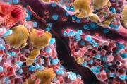 Костный мозг из пробирки спорит по качеству с настоящим