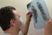 Волынские врачи пытаются остановить массовую вспышку туберкулеза