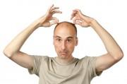 Ученые пообещали избавить людей от седых волос и облысения